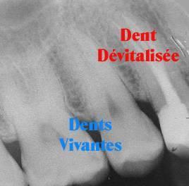 http://dent.devitalisee.free.fr/images/burnds2.jpg